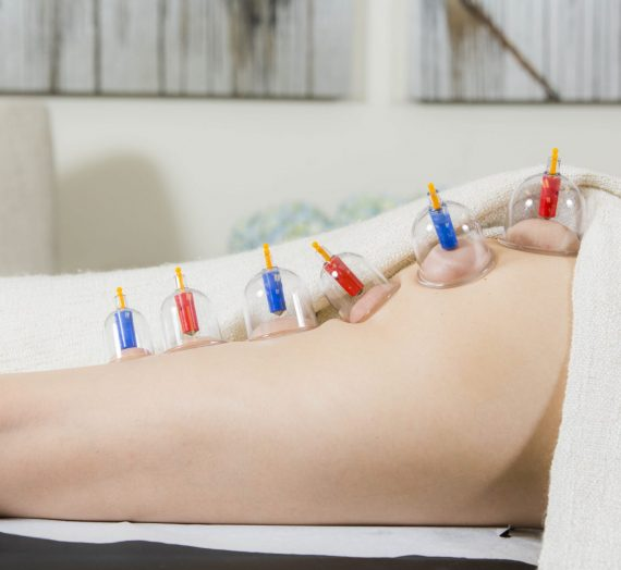 Terapia con ventosas o cupping: ¿sirve para eliminar la celulitis?